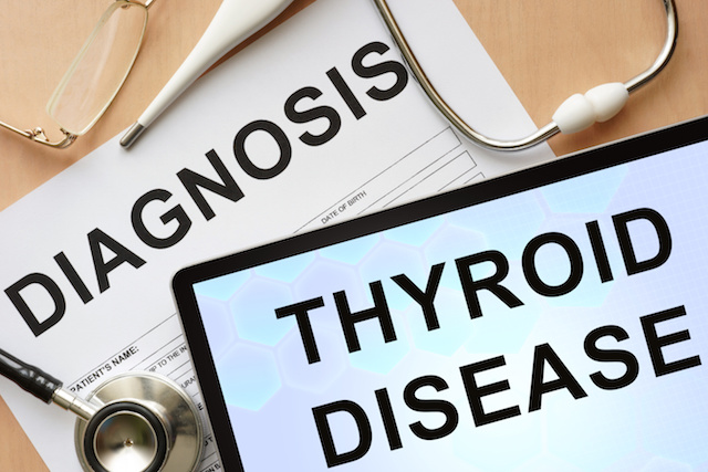 hashimotos disease
