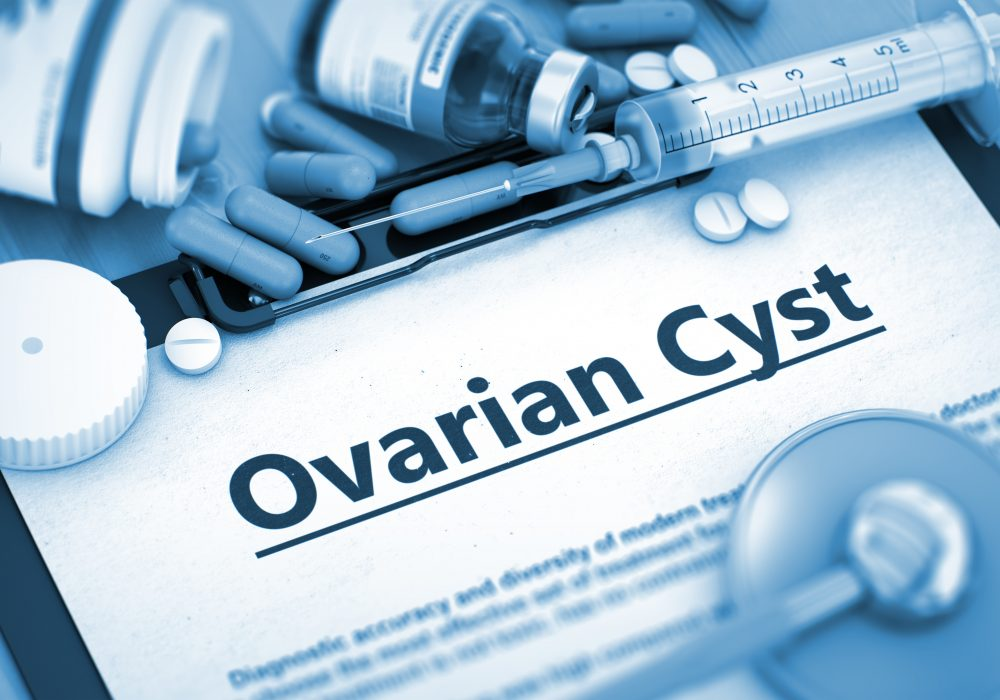 Do I Have Polycystic Ovary Syndrome?