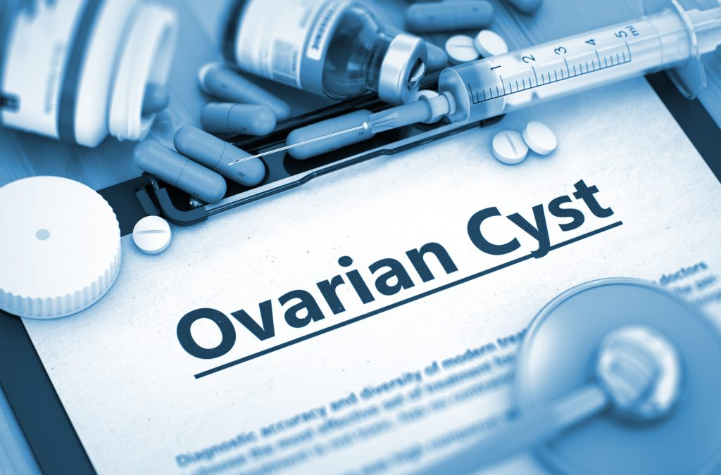 do i have polycystic ovary syndrome