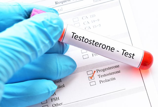 What Tests to Diagnose PCOS
