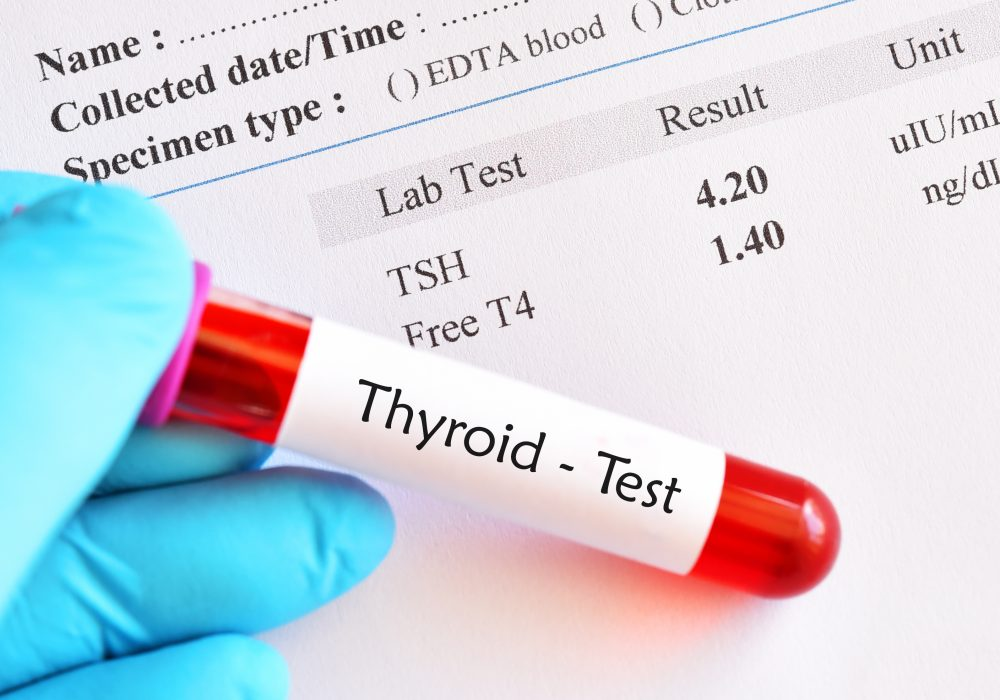 Should I Take Thyroid Medicine Before Blood Test? | PYHP 092