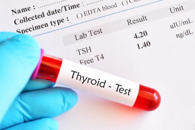 should I take thyroid medication before blood test